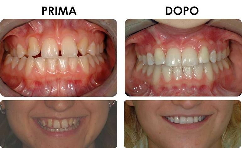 studio picchioni odontoiatria agenesia incisivi laterali