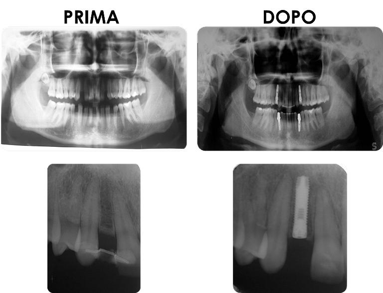 studio picchioni odontoiatria impianti denti