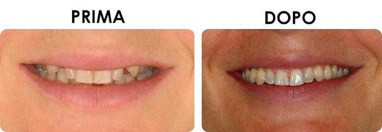 studio picchioni odontoiatria implantologia