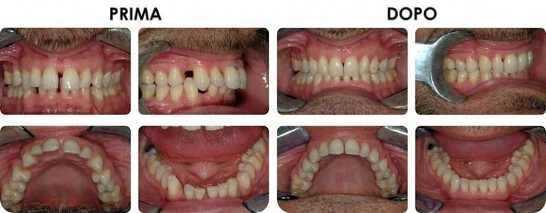 studio picchioni odontoiatria ortodonzia invisibile