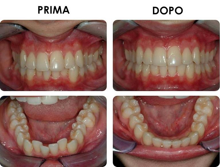 studio picchioni odontoiatria ortodonzia