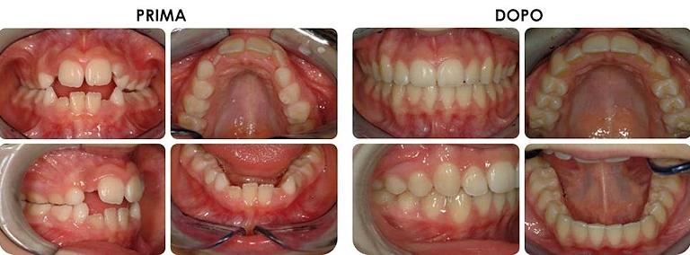 studio picchioni odontoiatria ortodonzia prima e dopo
