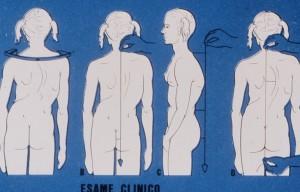esame clinico postura