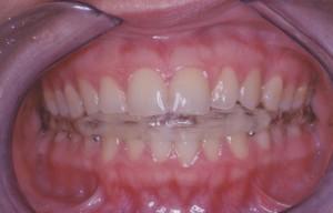 gnatologia btanca odontoiatria