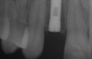 impiantologia dente singolo