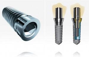 impiantologia denti