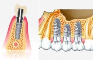 impiantologia denti esempio