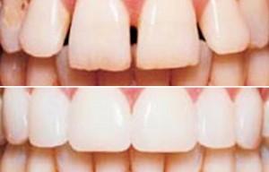 odontoiatria restaurativa risultati