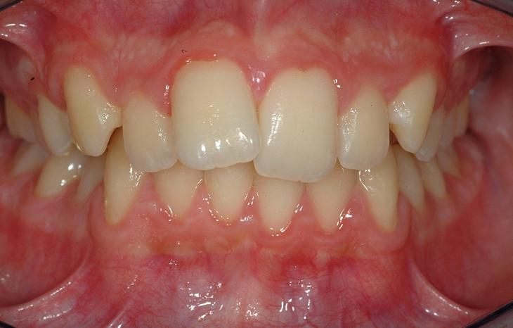 ortodonzia adolescente