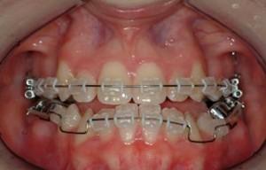 ortodonzia intervento chirurgia correttiva