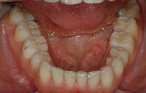 ortodonzia invisibile risultato allineamento