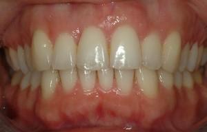 ortodonzia invisibile trattamento mascherina trasparente
