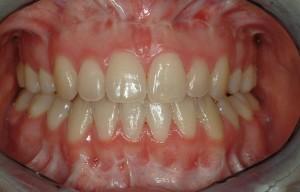 ortodonzia prechirurgica risultati